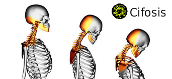 cifosis-desviaciones -columna-vertebral-cervicales-tratamiento-patologias-fernanda-millions-dutra-pilates-sant-celoni-bienestar-salud-fitness